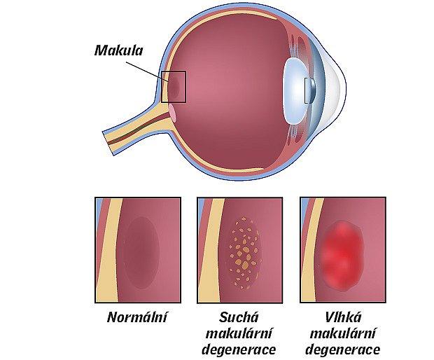 makula