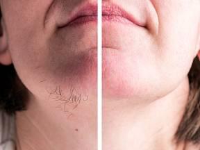 Chloupky na bradě mohou působit u žen velmi rušivě.