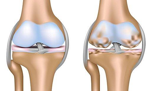 zdraví kloub a kloub postižený osteoartrózou