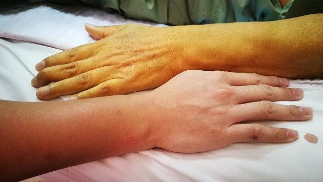 K varovným signálům může patřit i změna barvy kůže.