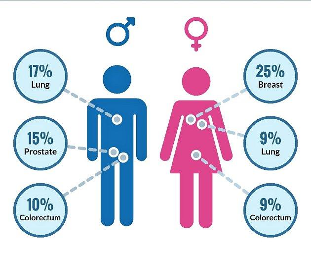 Nejčastější druhy nádorových onemocnění podle pohlaví.