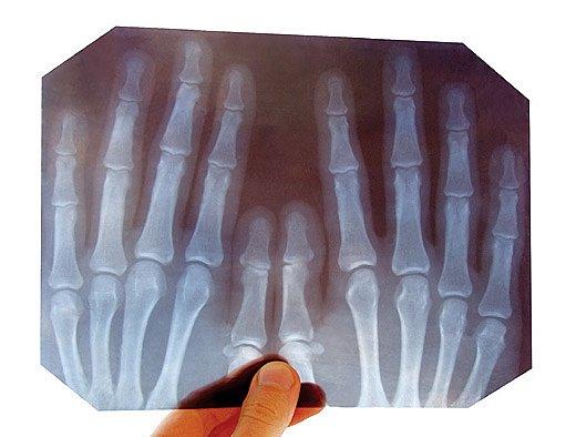rentgen rukou