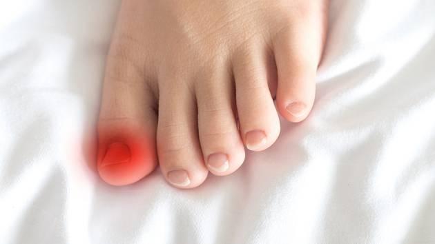Červená vám okolí nehtů na nohou a cítíte nepříjemný tlak až bolest?