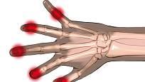 Artrózou postižené klouby na rukou jsou bolestivé a zduřelé.