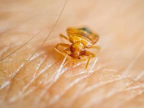 Přetrvává názor, že s parazity se můžete setkat výhradně ve špinavých domácnostech.