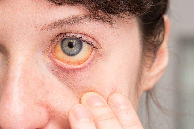 Příznaky, které bychom neměli podceňovat: zežloutnutí kůže a očního bělma.