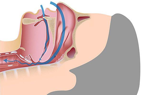 Měkké patro ve spánku lehce poklesne a částečně zablokuje dýchácí cesty.