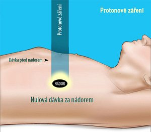 Proton však dokáže ozářit nádor tak, že do příslušného kritického orgánu není dodána žádná dávka.