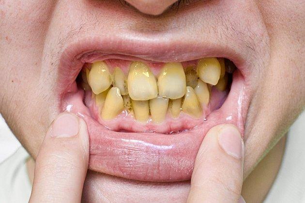 Nepěkné zbarvení zubů způsobuje kouření cigaret.
