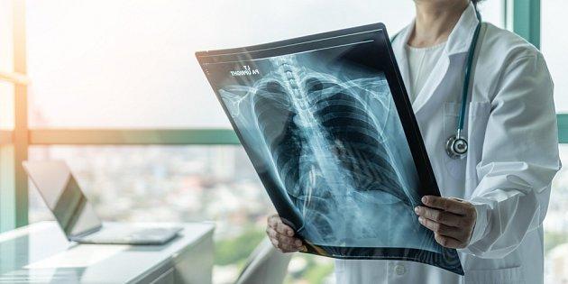 Na rakovině plic mívá zásadní podíl kouření.
