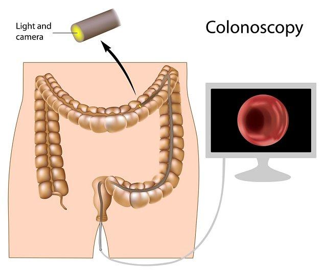 V případě podezření pošle lékař pacienta na kolonoskopické vyšetření.