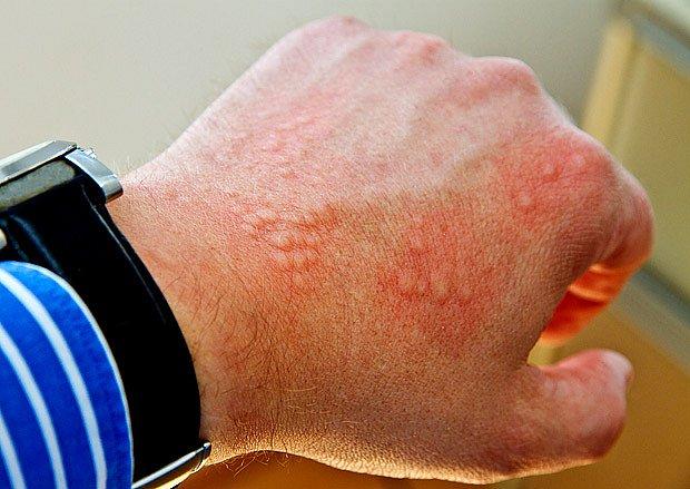 Ne každá kopřivka nebo otok musí být alergií