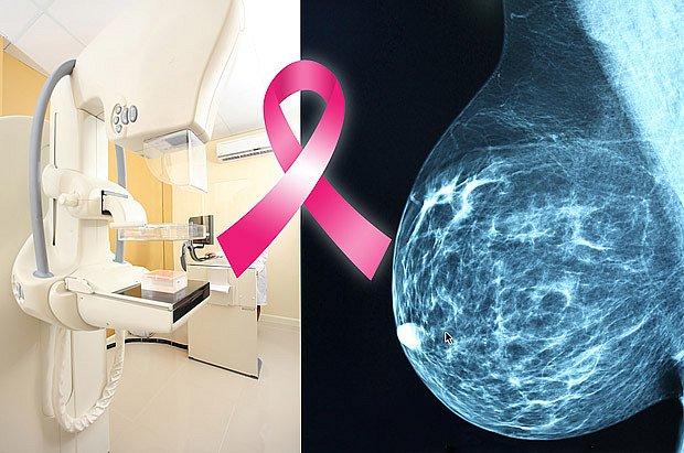 snímek prsu z mamografu