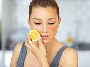 Tmavé pigmentové skvrny se často objevují na obličeji.