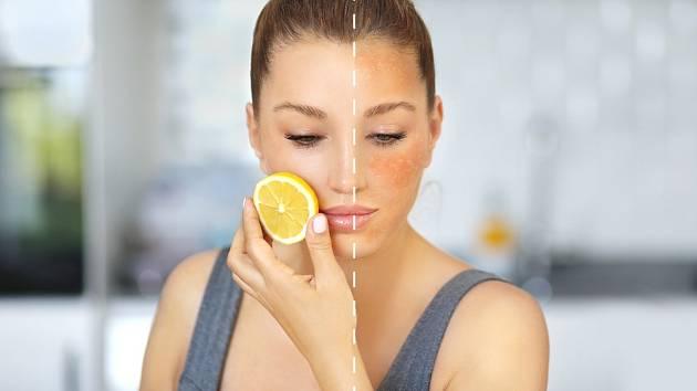 Jak odstranit stařecké pigmentové skvrny z obličeje