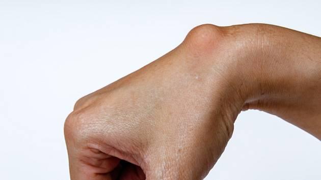 Tuková buňka neboli lipom je 1 až 3 cm velký