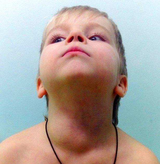 Cystický lymfangiom se dokáže zvětšovat do život ohrožujících rozměrů