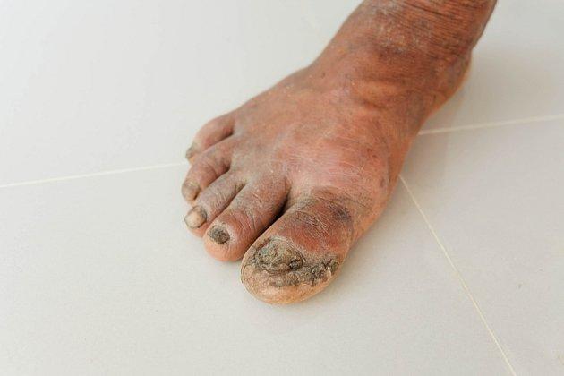 Noha cukrovkáře postižená plísní. Pacienty s cukrovkou bohužel čeká s plísněmi tužší boj, než zdravou část populace.