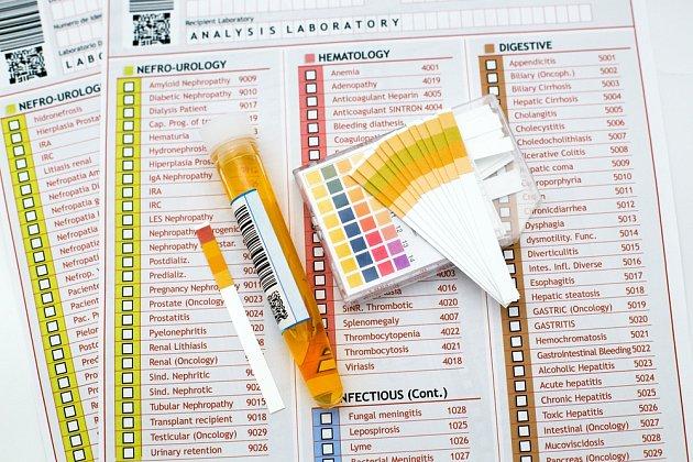Nejvíce informací získáme z moči laboratorním vyšetřením.