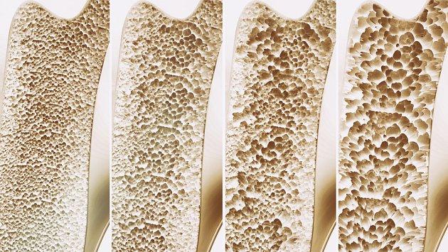 Osteoporóza, řídnutí kostí, vede až ke zlomeninám