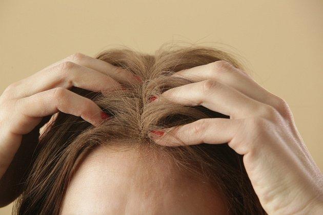 Nejen vlasy, ale i pokožce šampón z kopřiv pomůže