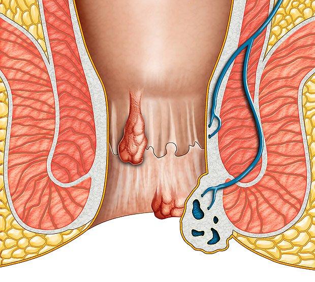 Hemeroidy mohou působit výrazné obtíže