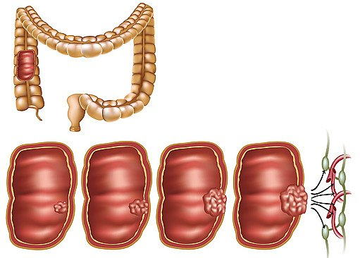 Karcinom tlustého střeva vzniká v naprosté většině zhoubnou přeměnou adenomového polypu