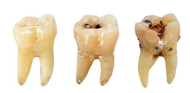 Zubní kaz dokáže zub vážně poškodit.