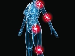 revmatoidní artritida