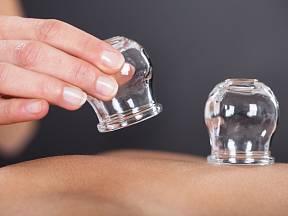 Baňkování patří k metodám alternativní medicíny.