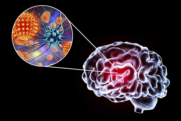 virus klíšťoové encefalitidy