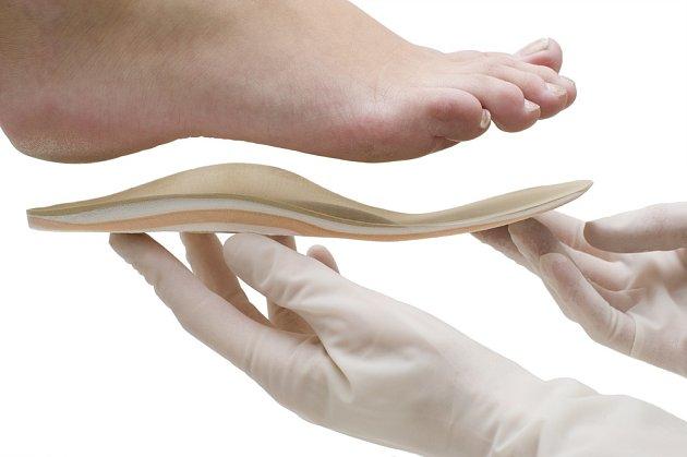Speciální ortopedické vložky se vyrábějí každému na míru.