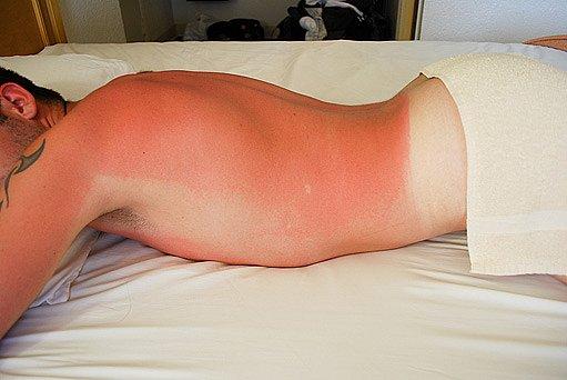 spálená kůže z přílišného opalování