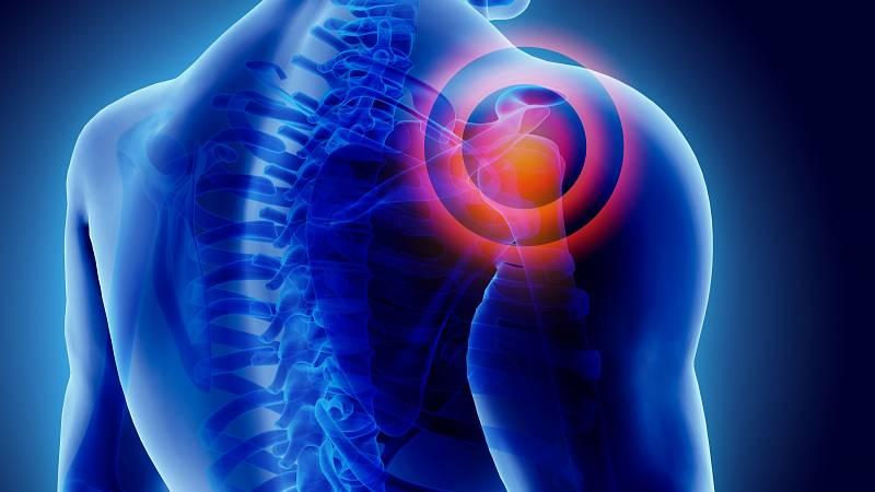 Impingement syndrom ramene – definice, příčiny a možnosti nápravy