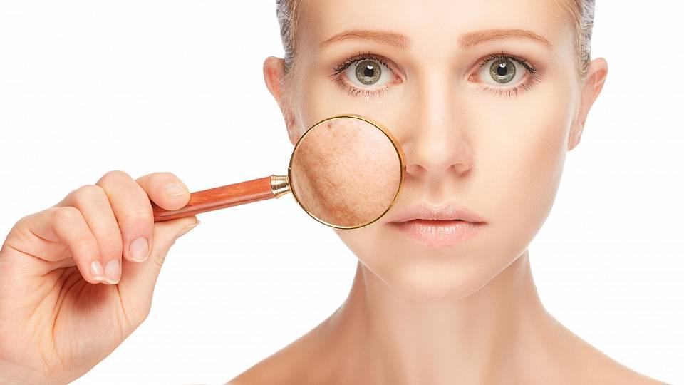 Jak silou přírody uklidnit podrážděnou pokožku?