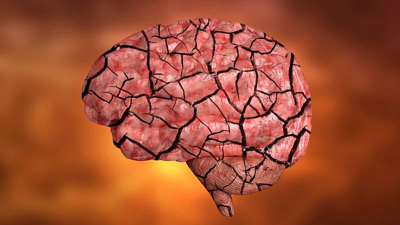 Roztroušenou sklerózou jsou více ohroženy kuřačky nebo ženy, které v nízkém věku dosáhly Body Mass Indexu nad 30.