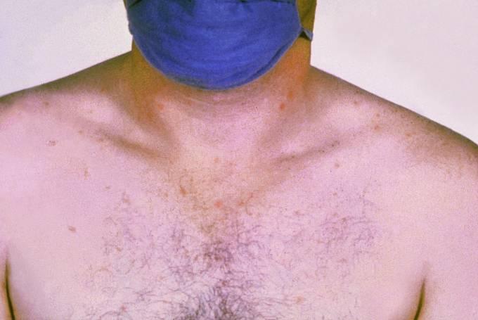 Jeden z příznaků břišního tyfu. Růžová vyrážka na břiše (tyfová roseola – není příliš častá).