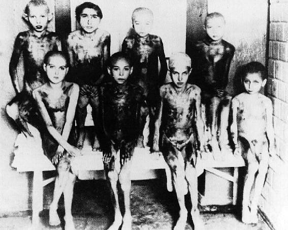 Nacističtí lékaři prováděli v koncentračních táborech pokusy i na dětech.