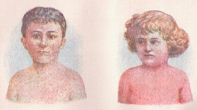 Rozdíl kožní vyrážky mezi spalničkami (vlevo) a spálou (vpravo).