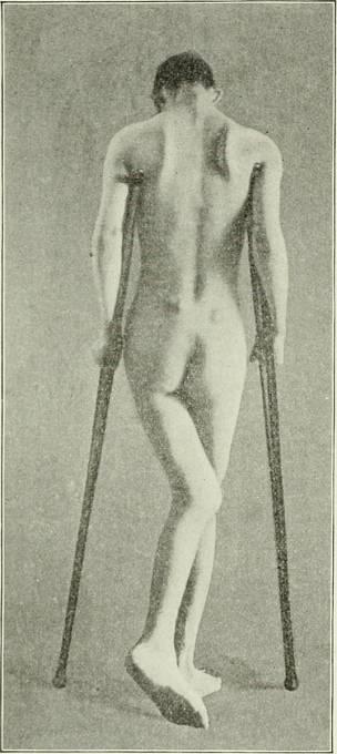 Kostěná ankylóza (osifikace vaziva) levého kyčelního kloubu jako následek břišního tyfu.