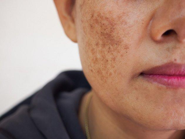 Pigmentové skvrny se objevují většinou na obličeji, na rukou a dekoltu.