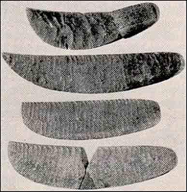 Prehistorické lékařské nástroje (kamenné skalpely).