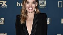 Amy Purdy má okouzlující úsměv