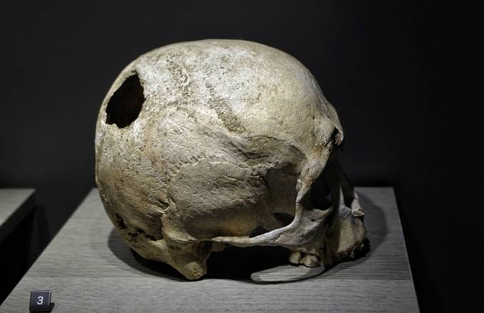 Lebka s otvorem po trepanaci z 2.-3. tisíciletí př. n. l.