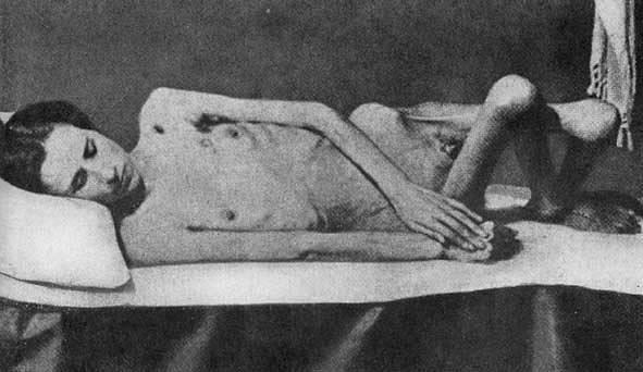 Vězeňkyně z Ravenbrücku vyhublá na kost. Z celkového počtu 132 000 žen a dětí, které prošly Ravensbrückem, zahynulo 92 000 obětí.