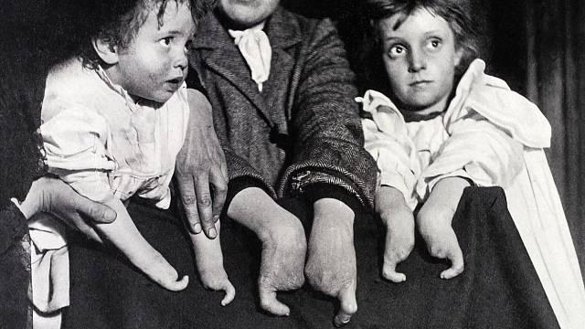 Deformace prstů je dědičná.