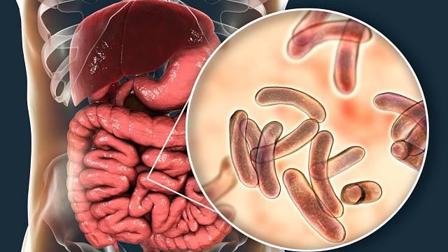 Cholera napadá tenké střevo a způsobuje těžké průjmy.