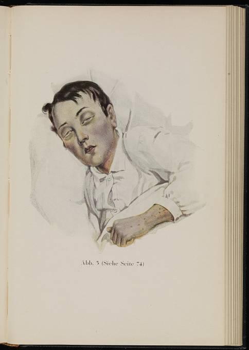 Ilustrace zobrazuje 22letého muže s břišním tyfem. Zemřel po pěti dnech. Rok 1840.