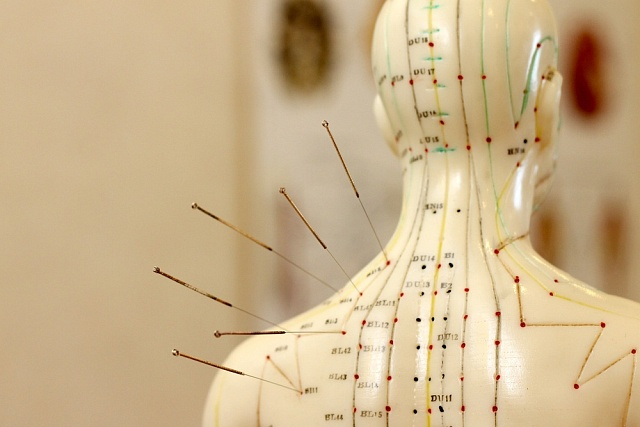 Tradiční čínská medicína vpodobě akupunktury.