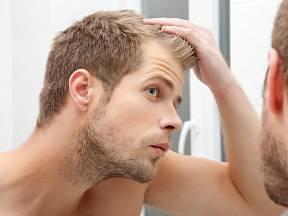 Problém vypadávání vlasů by se měl řešit hned v začátku.